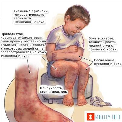 Геморрагический васкулит: болезнь Шенлейна-Геноха у взрослых - Женский сайт FCW.SU