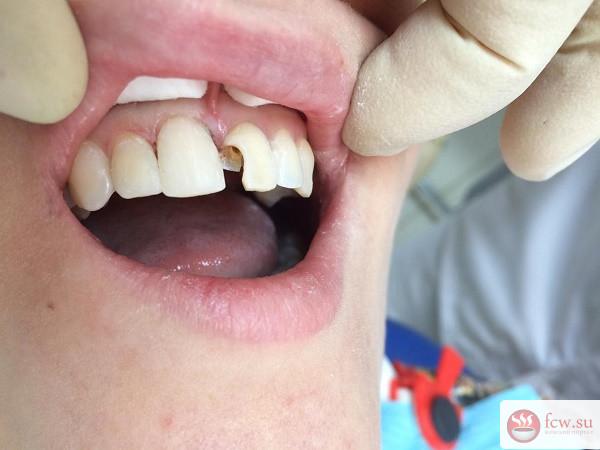 Возможно ли предотвратить зубной кариес