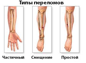Перелом руки: как оказать первую помощь - Женский сайт FCW.SU