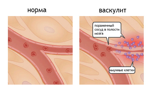 Геморрагический васкулит: болезнь Шенлейна-Геноха у взрослых ...